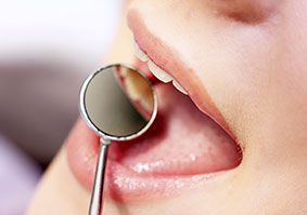 Regular Dental Checkups Toronto ON