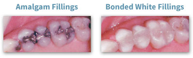 Tooth Colored Dental Fillings Toronto ON